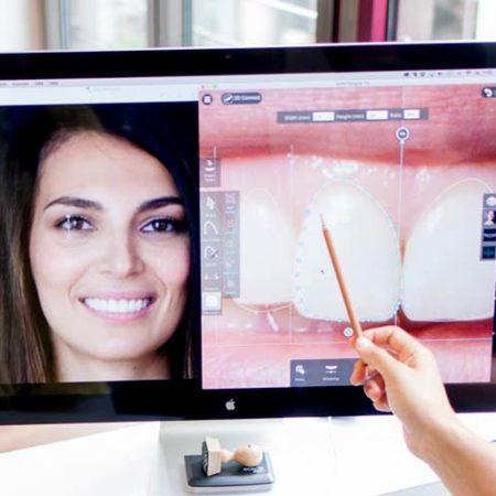 Veneers für Schöne Zähne - Die Zahnärzte von MYVeneers.de im Interview